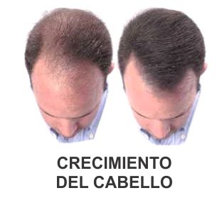 Quien ha sanado la alopecia de hombre